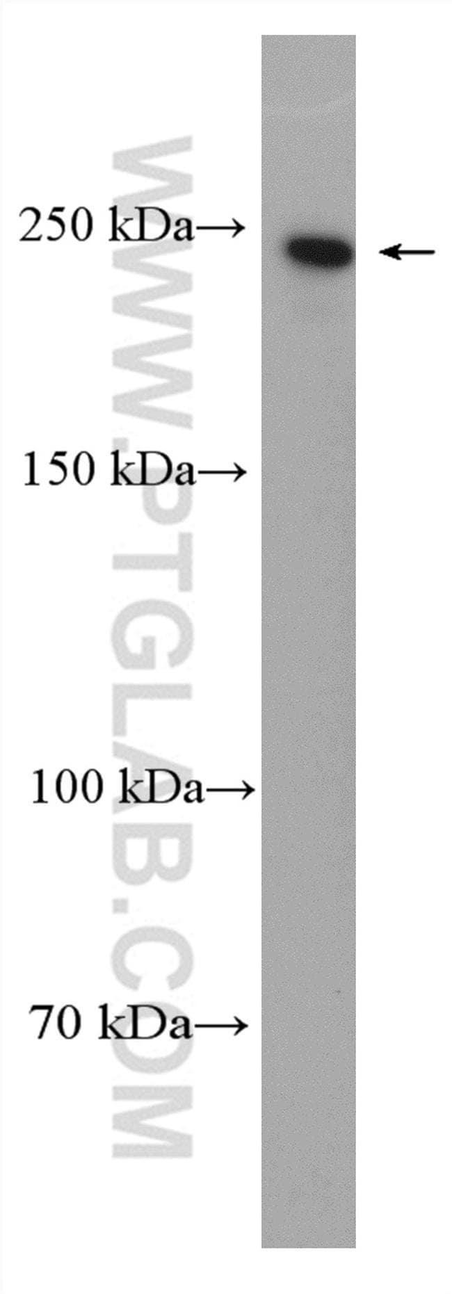 NuMA Rabbit anti-Human, Mouse, Rat, Polyclonal, Proteintech 20 μL; Unconjugated Ver productos