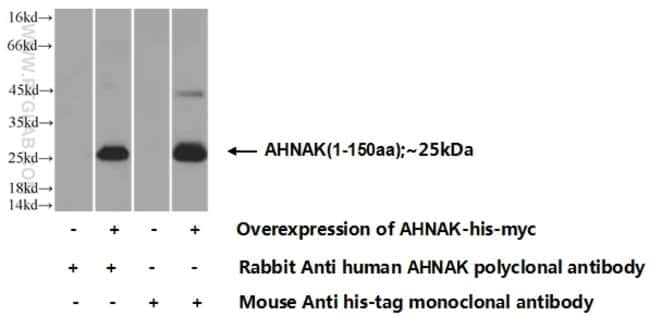 AHNAK Rabbit anti-Human, Polyclonal, Proteintech 20 μL; Unconjugated Ver productos