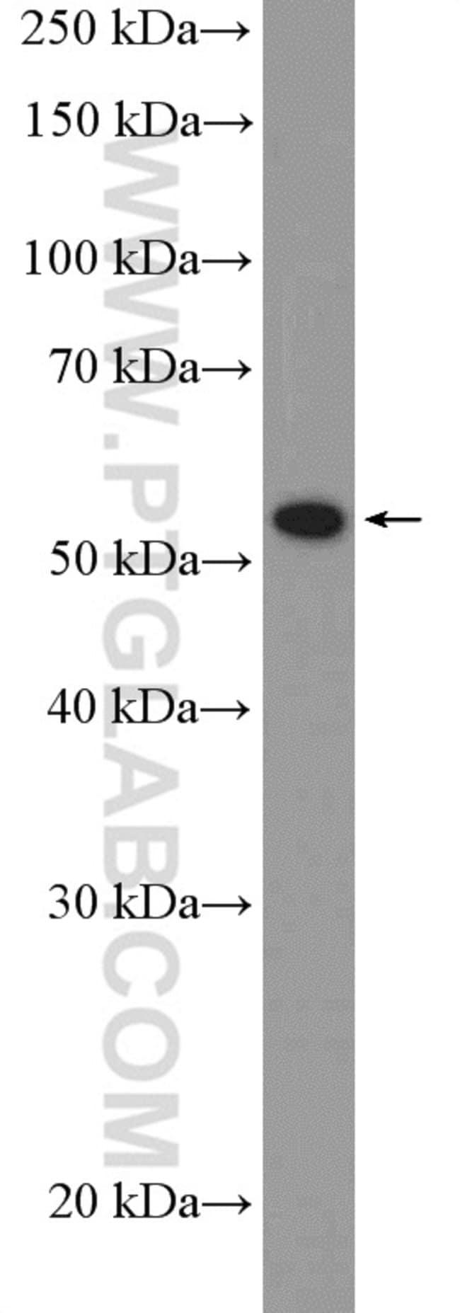 PPAR gamma Rabbit anti-Human, Mouse, Rat, Polyclonal, Proteintech 20 μL; Unconjugated Ver productos