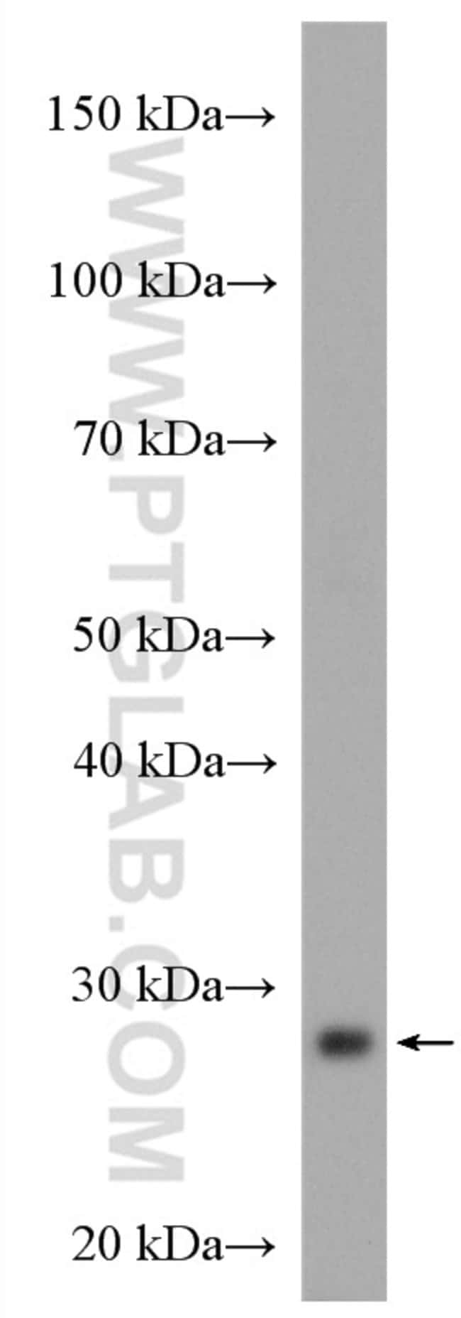 COQ4 Rabbit anti-Human, Mouse, Rat, Polyclonal, Proteintech 20 μL; Unconjugated Ver productos