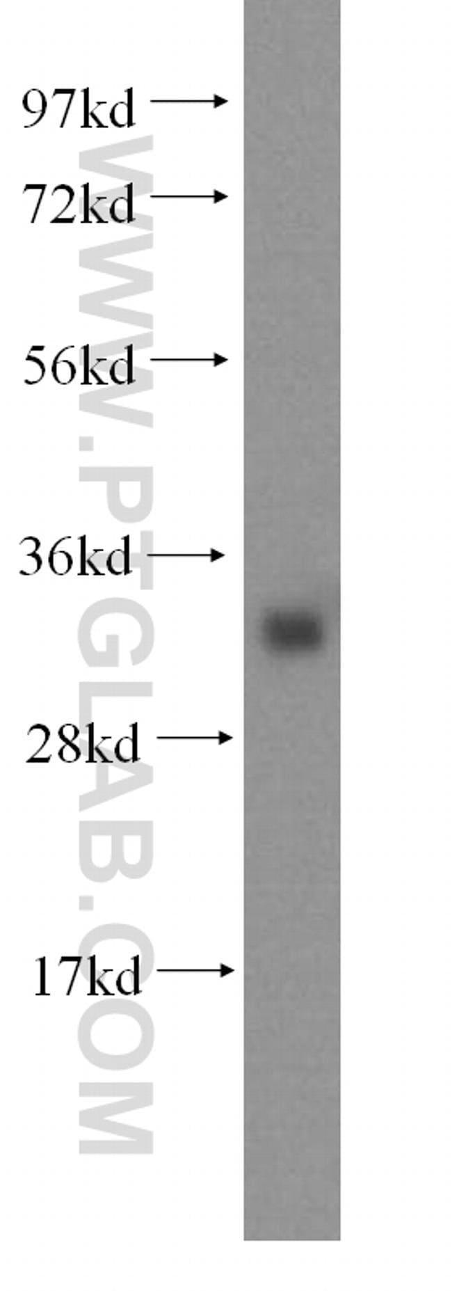 IYD Rabbit anti-Human, Polyclonal, Proteintech 150 μL; Unconjugated Produkte
