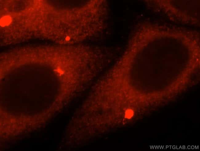 AMFR Rabbit anti-Human, Mouse, Rat, Polyclonal, Proteintech 20 μL; Unconjugated Ver productos