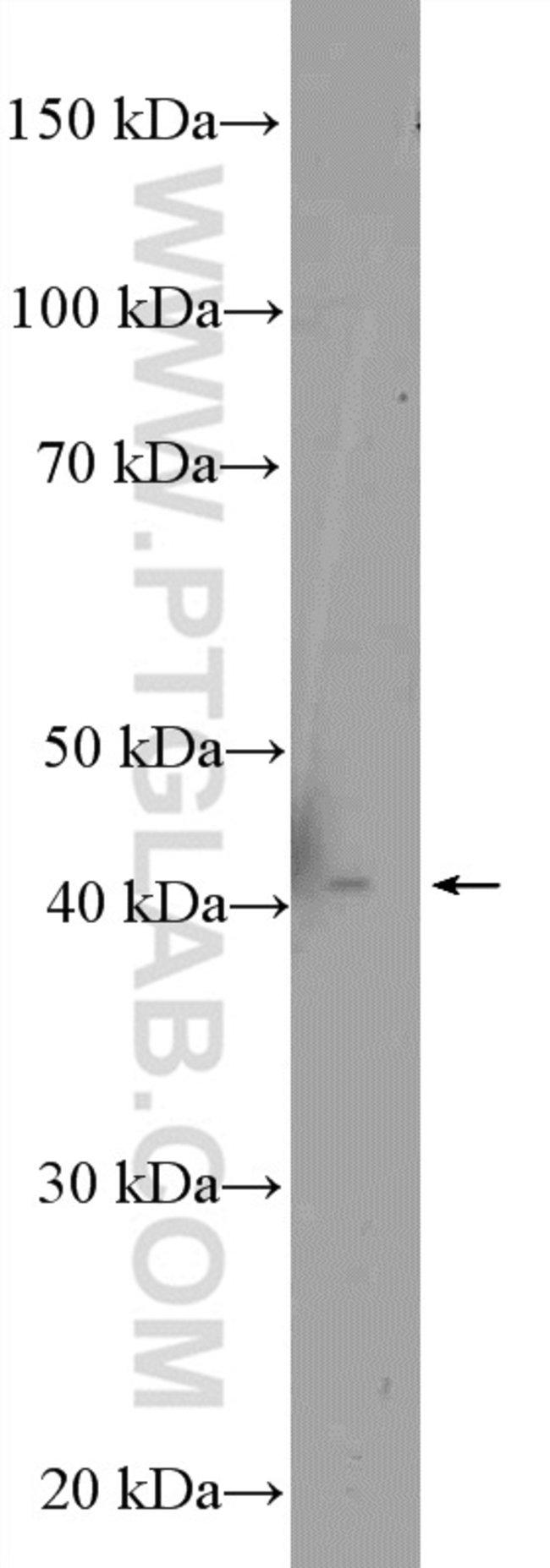 MTRF1L Rabbit anti-Human, Mouse, Rat, Polyclonal, Proteintech 20 μL; Unconjugated Ver productos