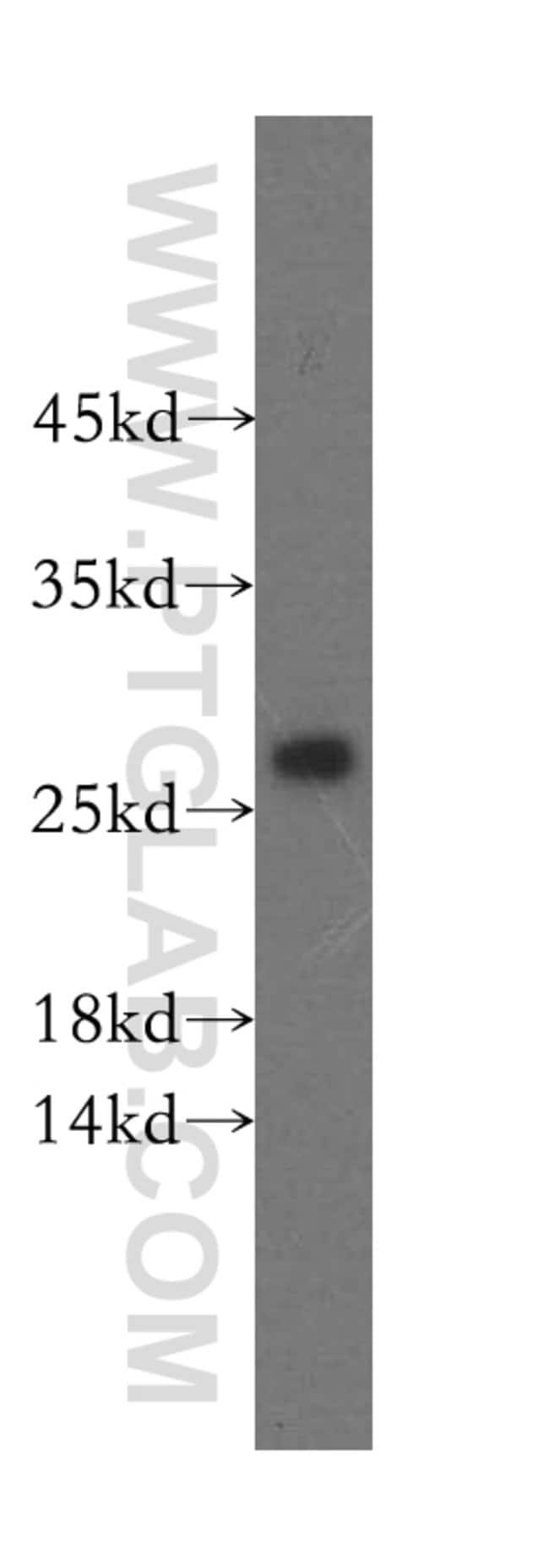 IDI2 Rabbit anti-Human, Polyclonal, Proteintech 20 μL; Unconjugated Ver productos