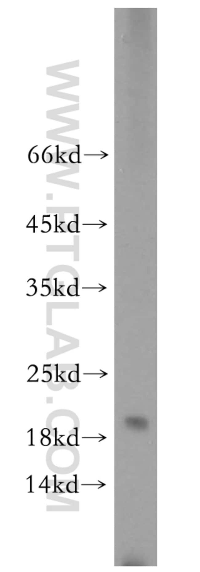 ARPC5 Rabbit anti-Human, Mouse, Rat, Polyclonal, Proteintech 150 μL; Unconjugated Produkte