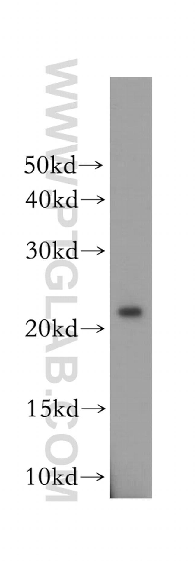 OBFC2A Rabbit anti-Human, Mouse, Rat, Polyclonal, Proteintech 150 μL; Unconjugated voir les résultats