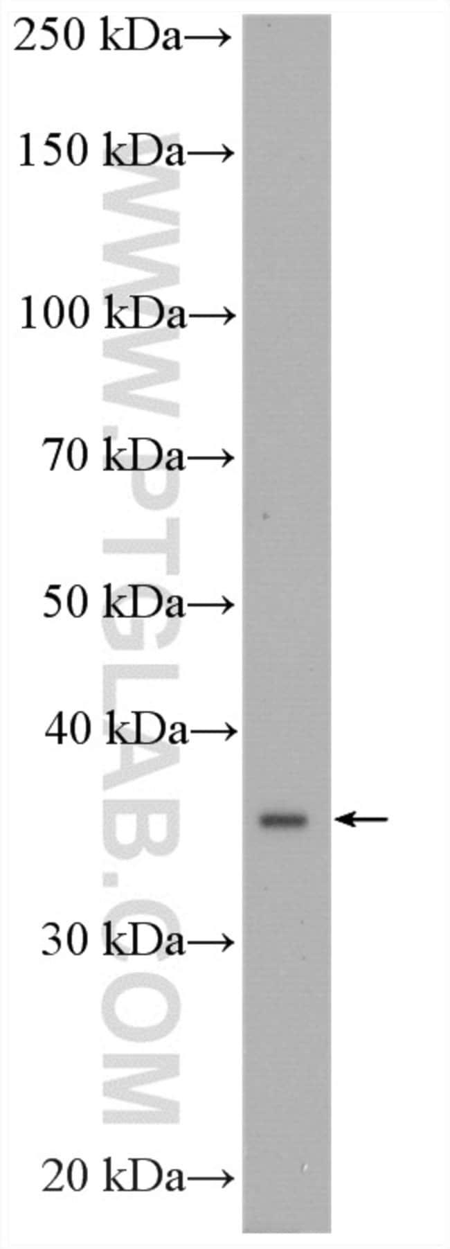 CPOX Rabbit anti-Human, Mouse, Rat, Polyclonal, Proteintech 150 μL; Unconjugated Produkte