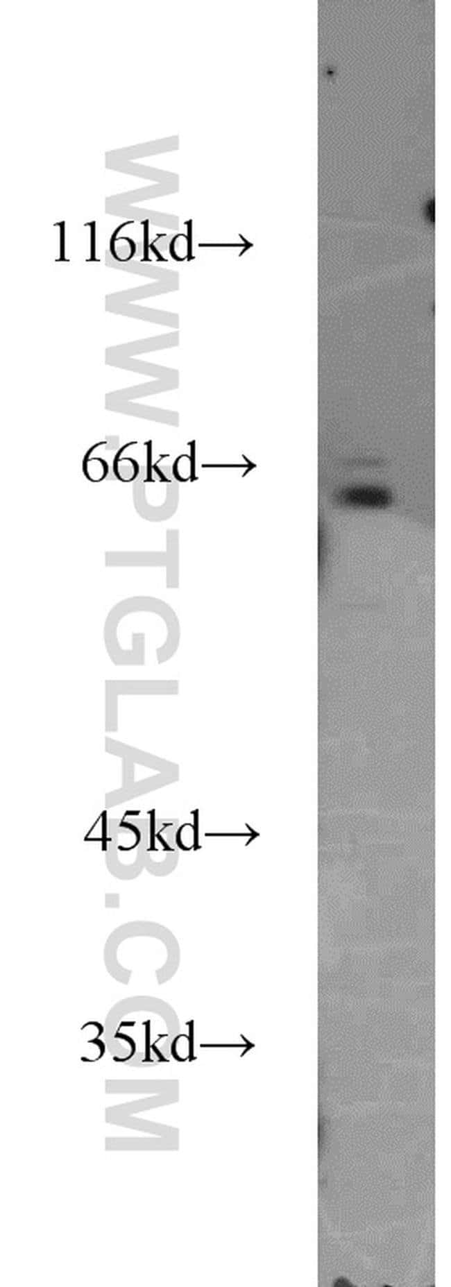 IL15RA Rabbit anti-Human, Polyclonal, Proteintech 150 μL; Unconjugated Produkte