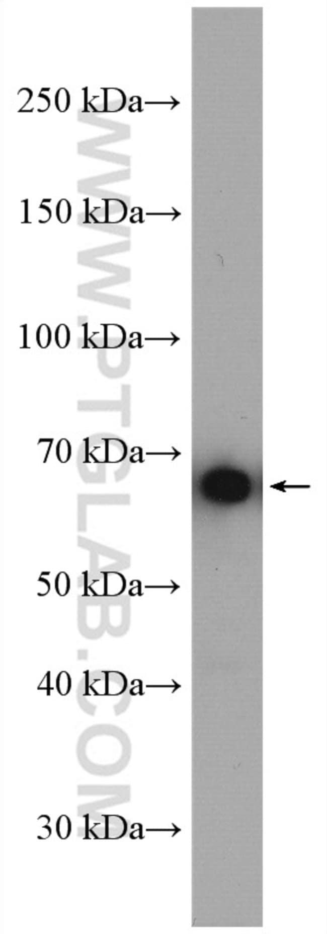 PCK1 Rabbit anti-Human, Mouse, Rat, Polyclonal, Proteintech 150 μL; Unconjugated Produkte