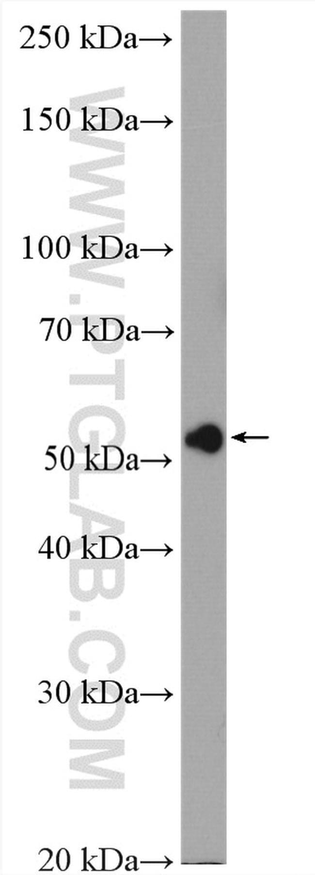 RCC2 Rabbit anti-Human, Polyclonal, Proteintech 20 μL; Unconjugated Ver productos