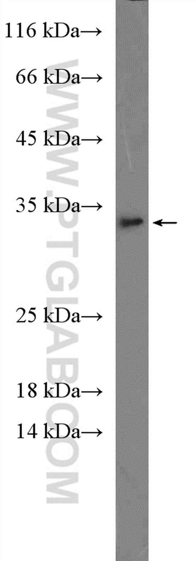 IL 1 alpha Rabbit anti-Human, Mouse, Polyclonal, Proteintech 150 μL; Unconjugated Produkte