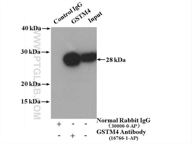 GSTM4 Rabbit anti-Human, Mouse, Rat, Polyclonal, Proteintech 150 μL; Unconjugated voir les résultats