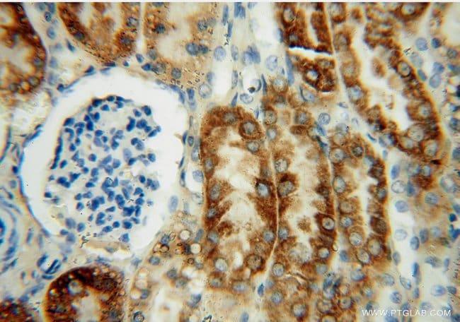 THEM2 Rabbit anti-Human, Mouse, Rat, Polyclonal, Proteintech 150 μL; Unconjugated voir les résultats