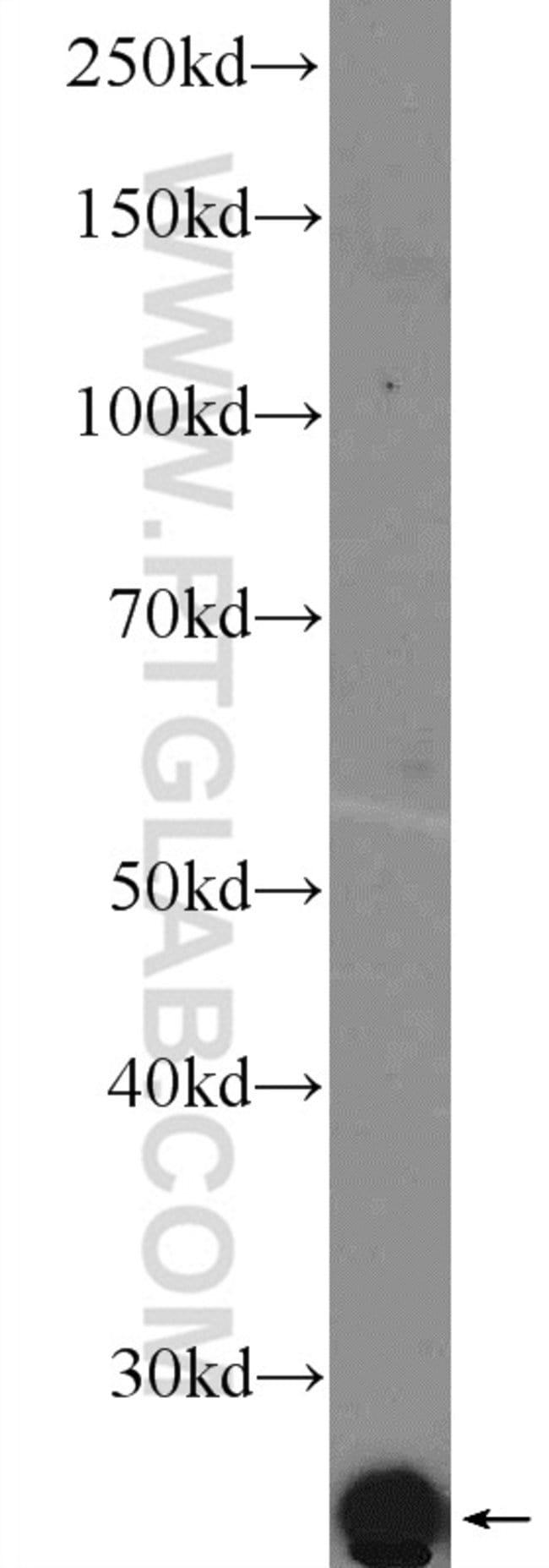 LITAF Rabbit anti-Human, Mouse, Rat, Polyclonal, Proteintech 150 μL; Unconjugated voir les résultats