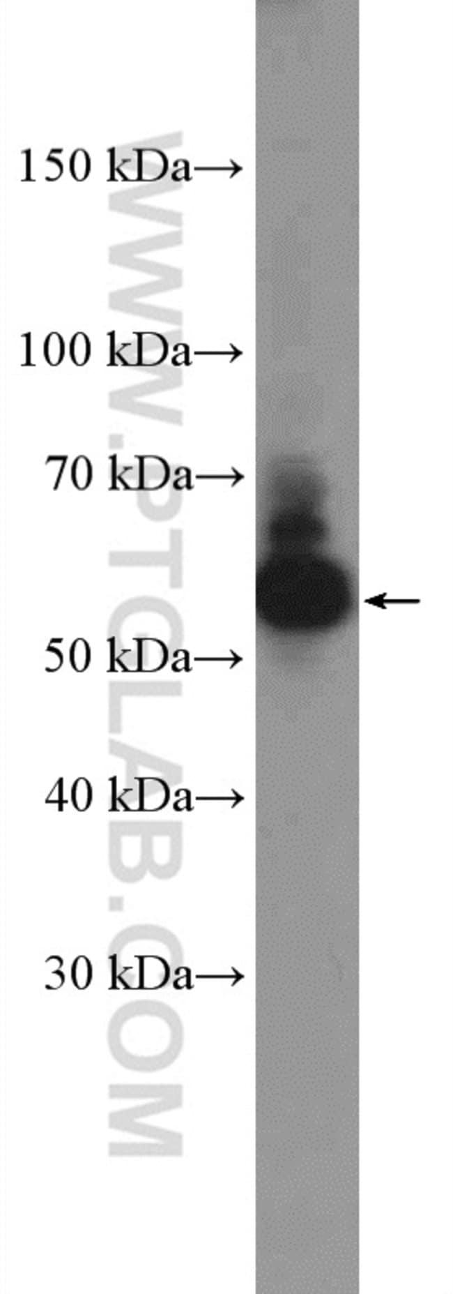 EED Rabbit anti-Human, Polyclonal, Proteintech 150 μL; Unconjugated Produkte