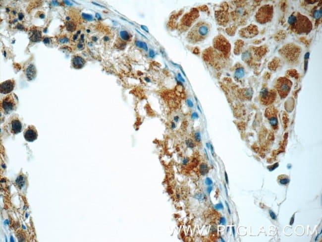 ZC3HAV1 Rabbit anti-Human, Mouse, Rat, Polyclonal, Proteintech 20 μL; Unconjugated Ver productos
