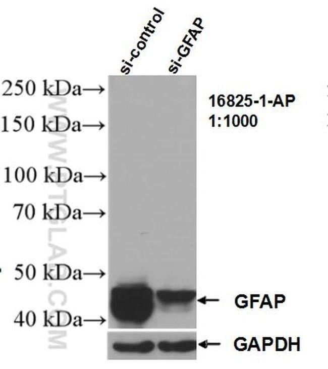 GFAP Rabbit anti-Human, Mouse, Rat, Polyclonal, Proteintech 150 μL; Unconjugated voir les résultats