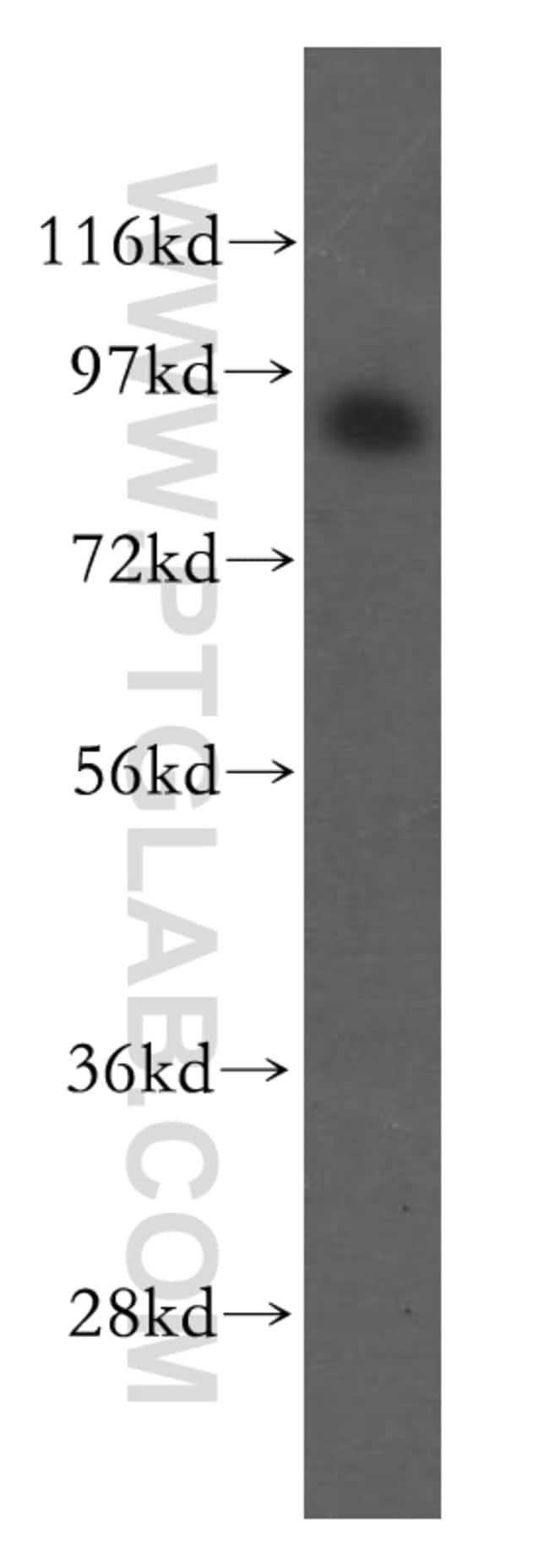 JAKMIP2 Rabbit anti-Human, Mouse, Rat, Polyclonal, Proteintech 150 μL; Unconjugated Produkte