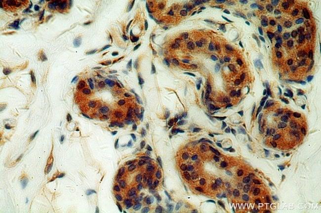 Cytokeratin 10 Rabbit anti-Human, Mouse, Rat, Polyclonal, Proteintech 150 μL; Unconjugated Produkte