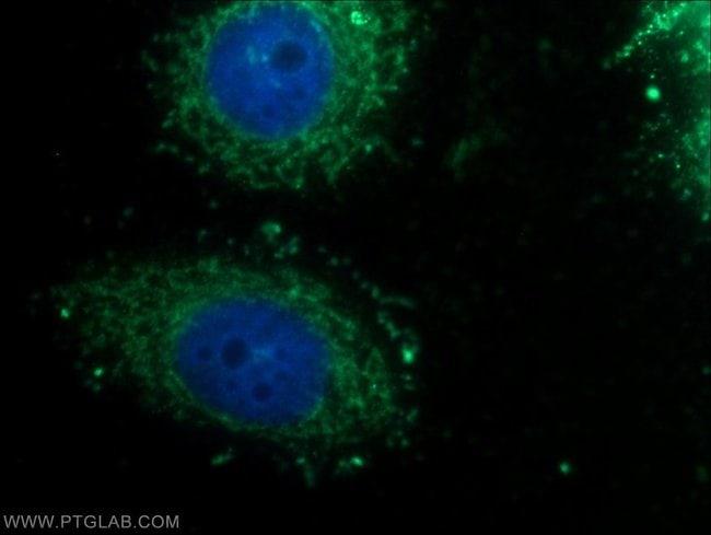 MTCH2 Rabbit anti-Human, Mouse, Polyclonal, Proteintech 150 μL; Unconjugated voir les résultats