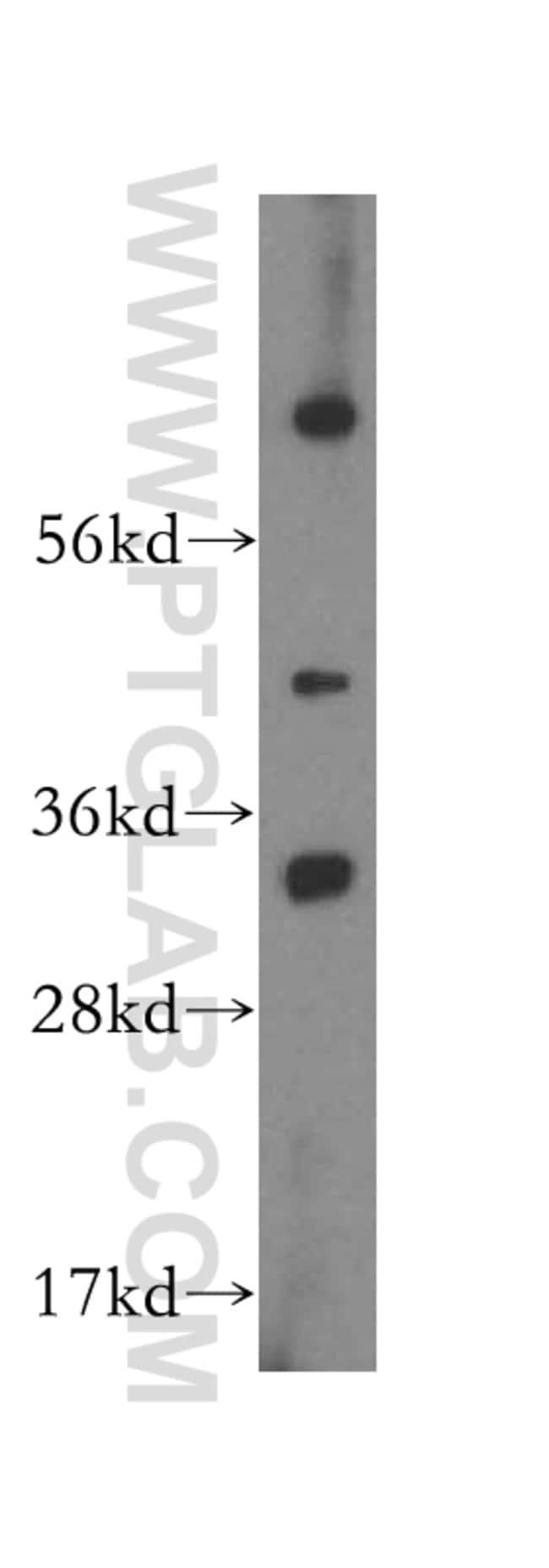 MTCH2 Rabbit anti-Human, Mouse, Polyclonal, Proteintech 20 μL; Unconjugated Ver productos