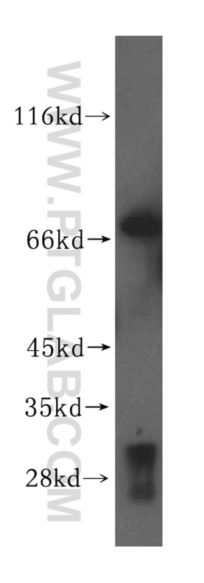 VPS33A Rabbit anti-Human, Mouse, Rat, Polyclonal, Proteintech 150 μL; Unconjugated Produkte