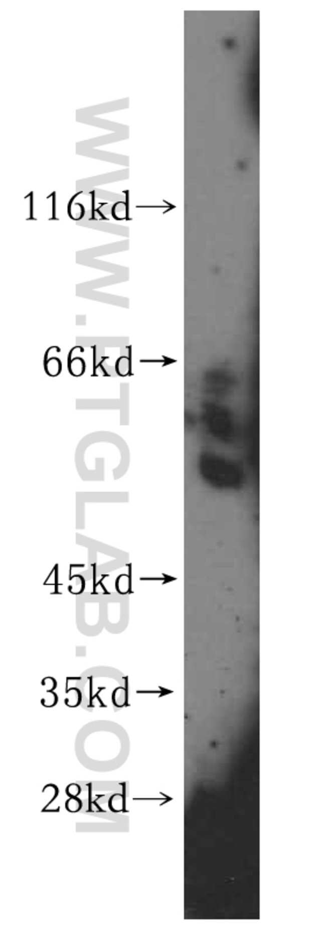 GPT Rabbit anti-Human, Mouse, Rat, Polyclonal, Proteintech 20 μL; Unconjugated Ver productos