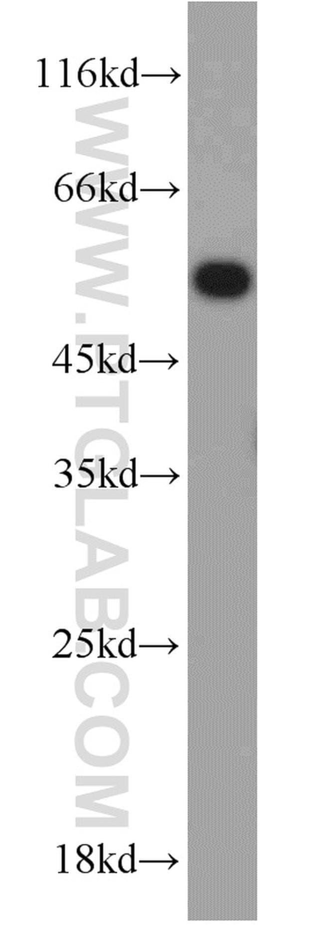 UBR7 Rabbit anti-Human, Mouse, Rat, Polyclonal, Proteintech 150 μL; Unconjugated Produkte