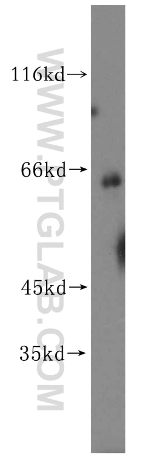 CES1 Rabbit anti-Human, Polyclonal, Proteintech 150 μL; Unconjugated Produkte