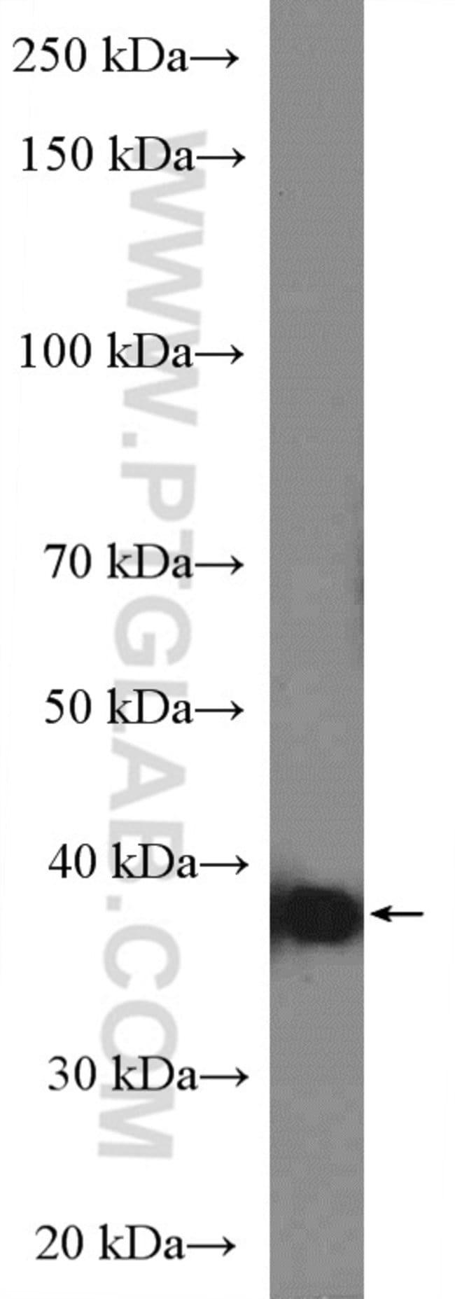 HLA-G Rabbit anti-Human, Polyclonal, Proteintech 150 μL; Unconjugated voir les résultats