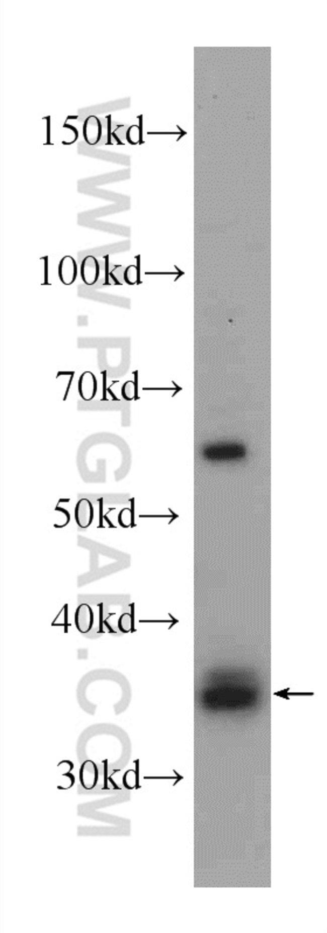 HSD17B7 Rabbit anti-Human, Polyclonal, Proteintech 150 μL; Unconjugated voir les résultats