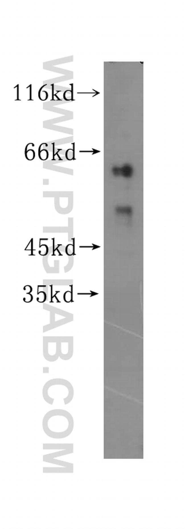 ZNF35 Rabbit anti-Human, Mouse, Rat, Polyclonal, Proteintech 150 μL; Unconjugated Produkte