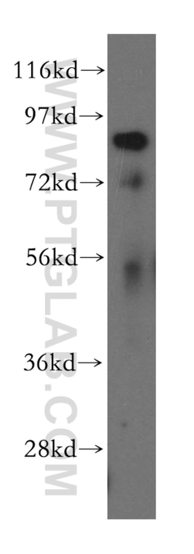 RNF10 Rabbit anti-Human, Polyclonal, Proteintech 150 μL; Unconjugated voir les résultats