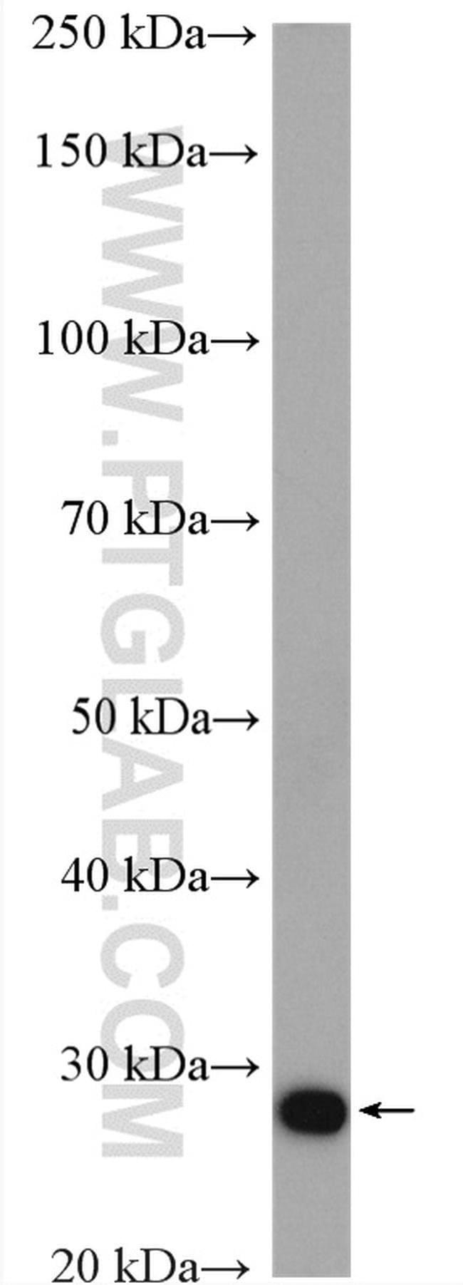 MOBKL2A Rabbit anti-Human, Mouse, Rat, Polyclonal, Proteintech 150 μL; Unconjugated voir les résultats