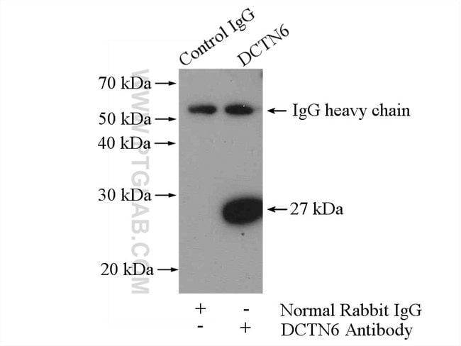 DCTN6 Rabbit anti-Human, Mouse, Rat, Polyclonal, Proteintech 20 μL; Unconjugated Ver productos