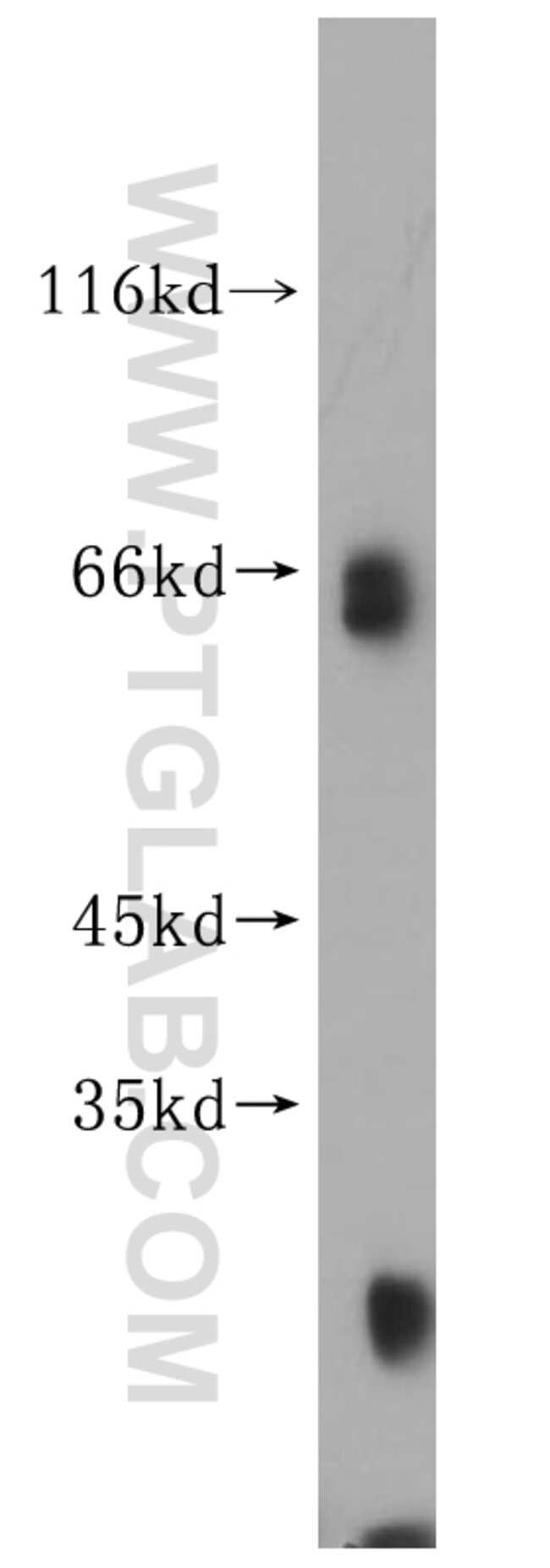 KLHL3 Rabbit anti-Human, Mouse, Rat, Polyclonal, Proteintech 150 μL; Unconjugated Produkte