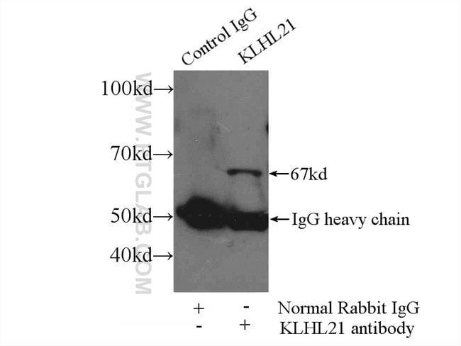 KLHL21 Rabbit anti-Human, Mouse, Rat, Polyclonal, Proteintech 20 μL; Unconjugated Ver productos