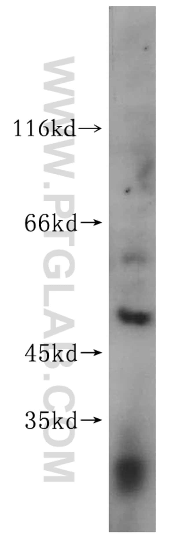 FANCC Rabbit anti-Human, Polyclonal, Proteintech 150 μL; Unconjugated Produkte