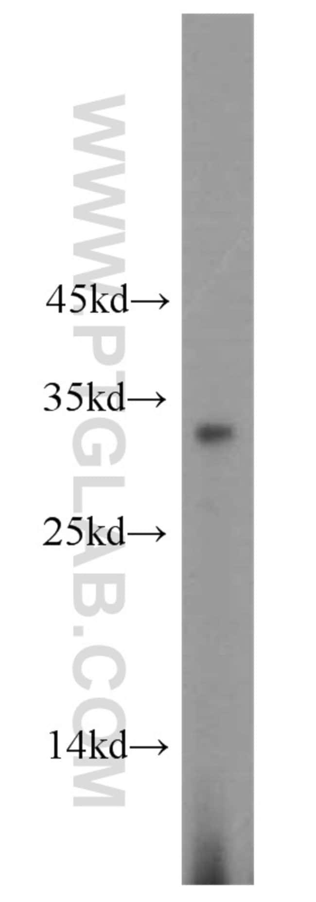 RPL8 Rabbit anti-Human, Mouse, Rat, Polyclonal, Proteintech 150 μL; Unconjugated Produkte