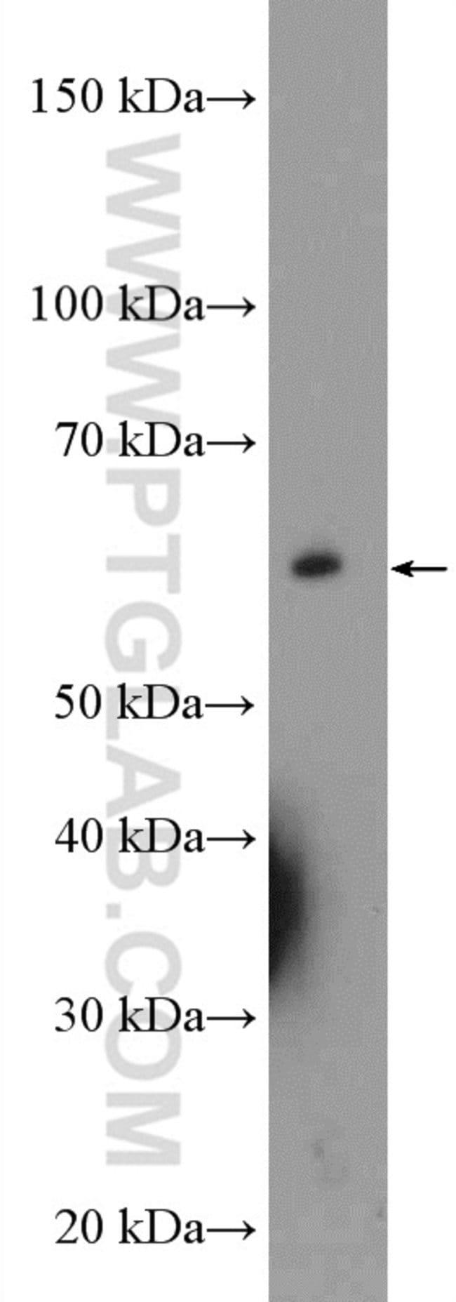 UCKL1 Rabbit anti-Human, Mouse, Rat, Polyclonal, Proteintech 150 μL; Unconjugated Produkte