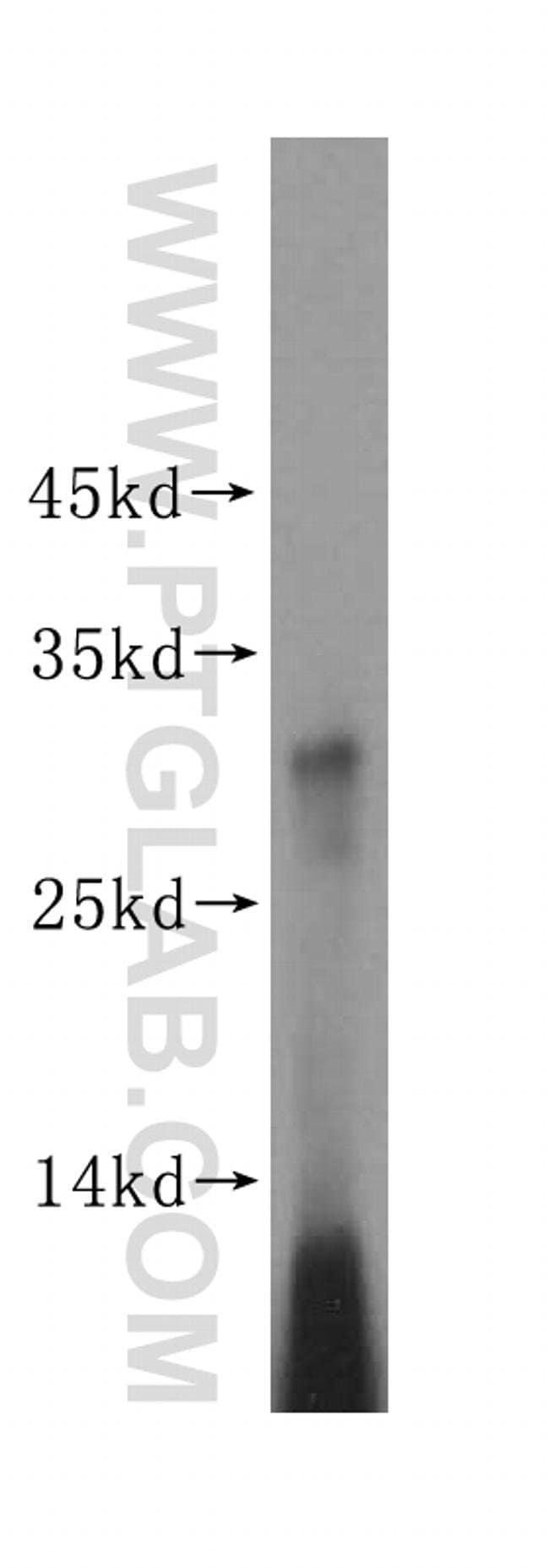 MRPS15 Rabbit anti-Human, Mouse, Rat, Polyclonal, Proteintech 20 μL; Unconjugated Ver productos