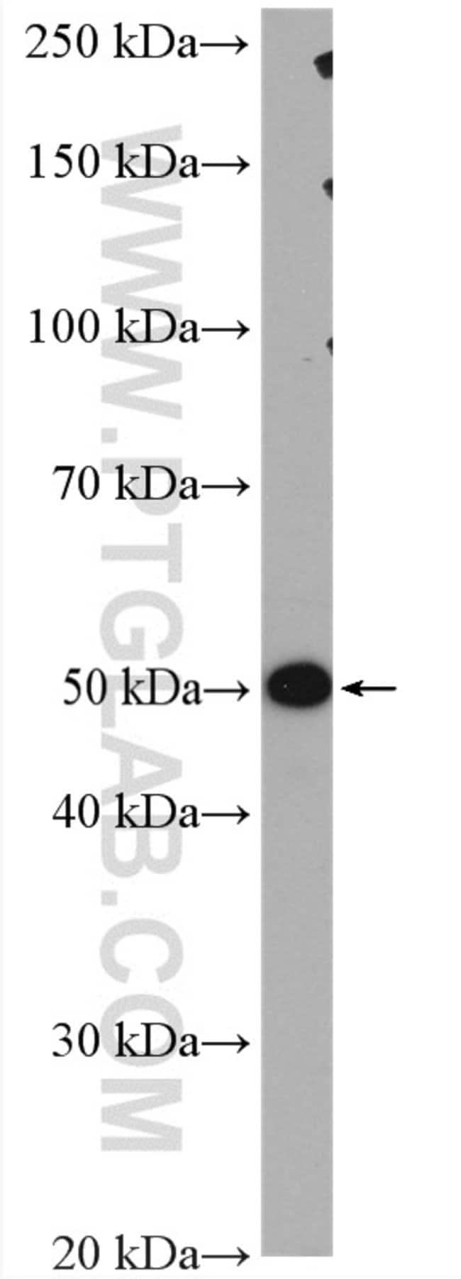 PPM1F Rabbit anti-Human, Mouse, Rat, Polyclonal, Proteintech 150 μL; Unconjugated Produkte