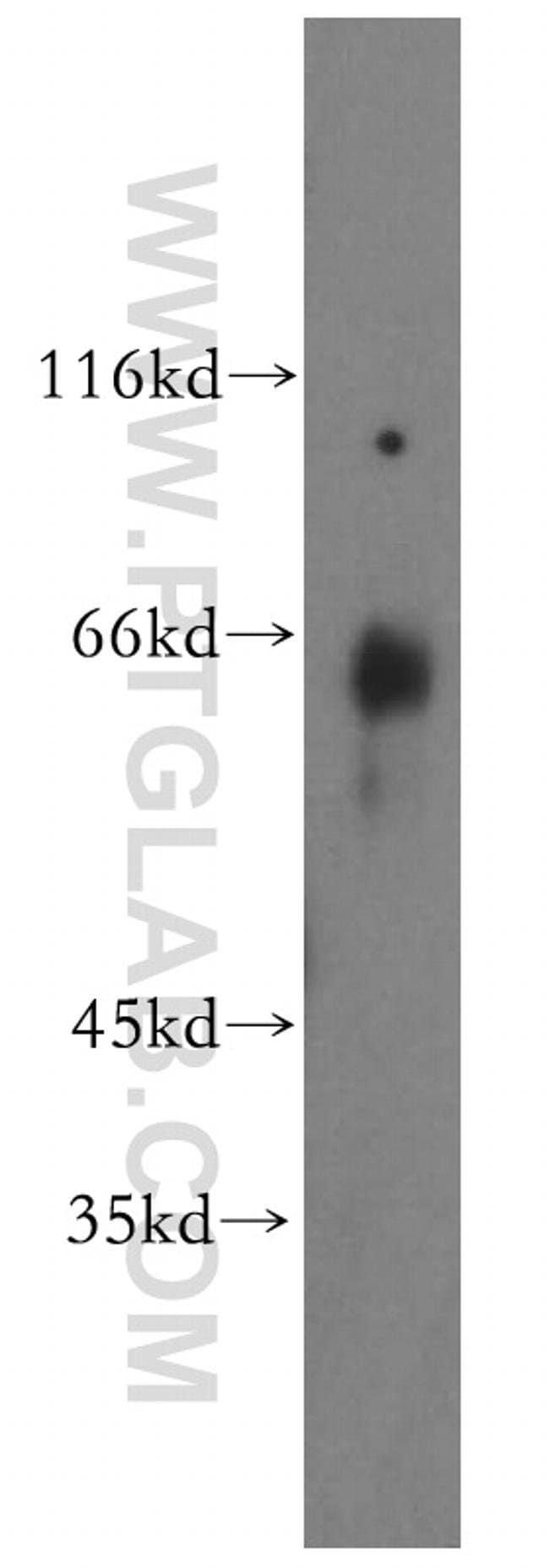 GEFT Rabbit anti-Human, Mouse, Rat, Polyclonal, Proteintech 150 μL; Unconjugated Produkte