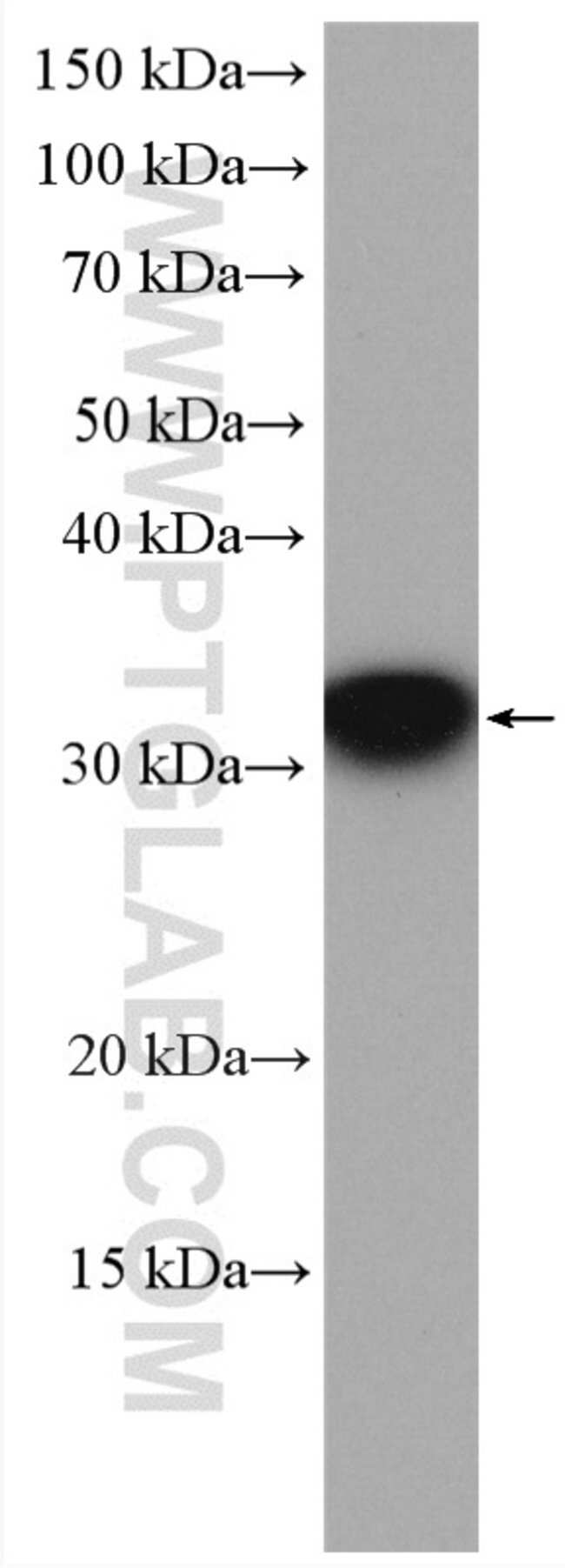 RWDD1 Rabbit anti-Human, Mouse, Rat, Polyclonal, Proteintech 20 μL; Unconjugated Ver productos