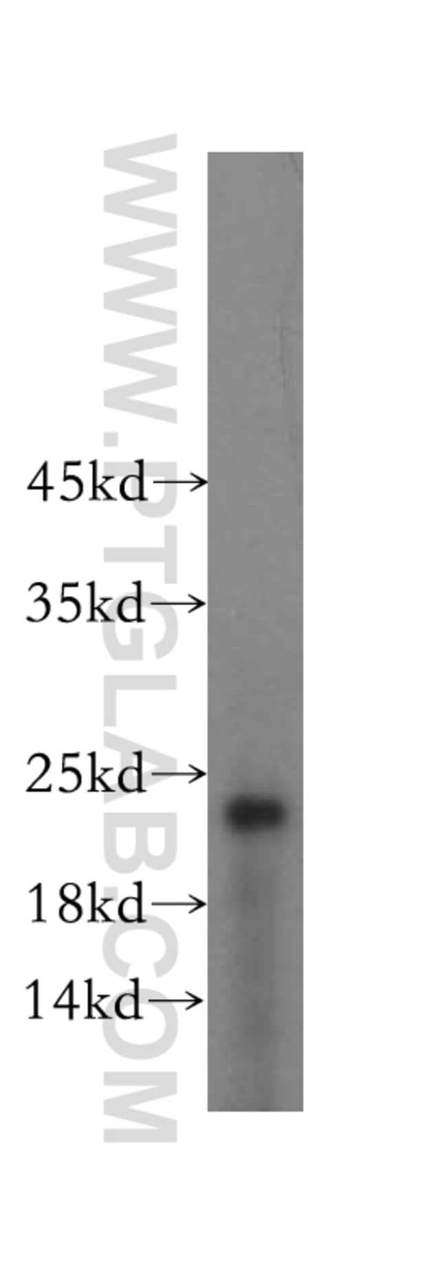 RPL24 Rabbit anti-Human, Mouse, Rat, Polyclonal, Proteintech 150 μL; Unconjugated Produkte