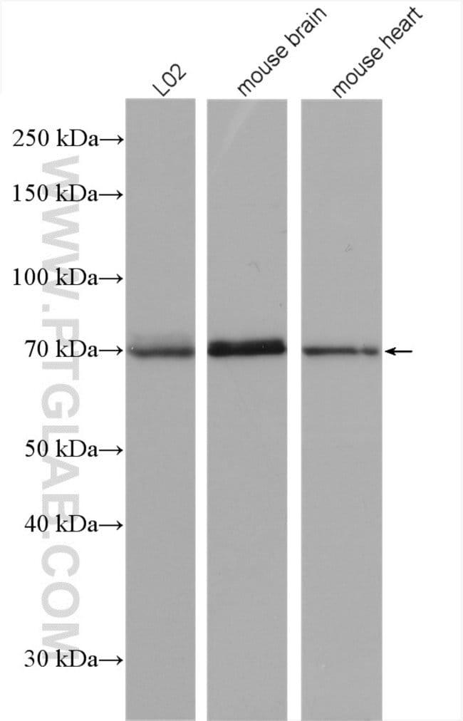SPHK2 Rabbit anti-Human, Mouse, Rat, Polyclonal, Proteintech 150 μL; Unconjugated Produkte