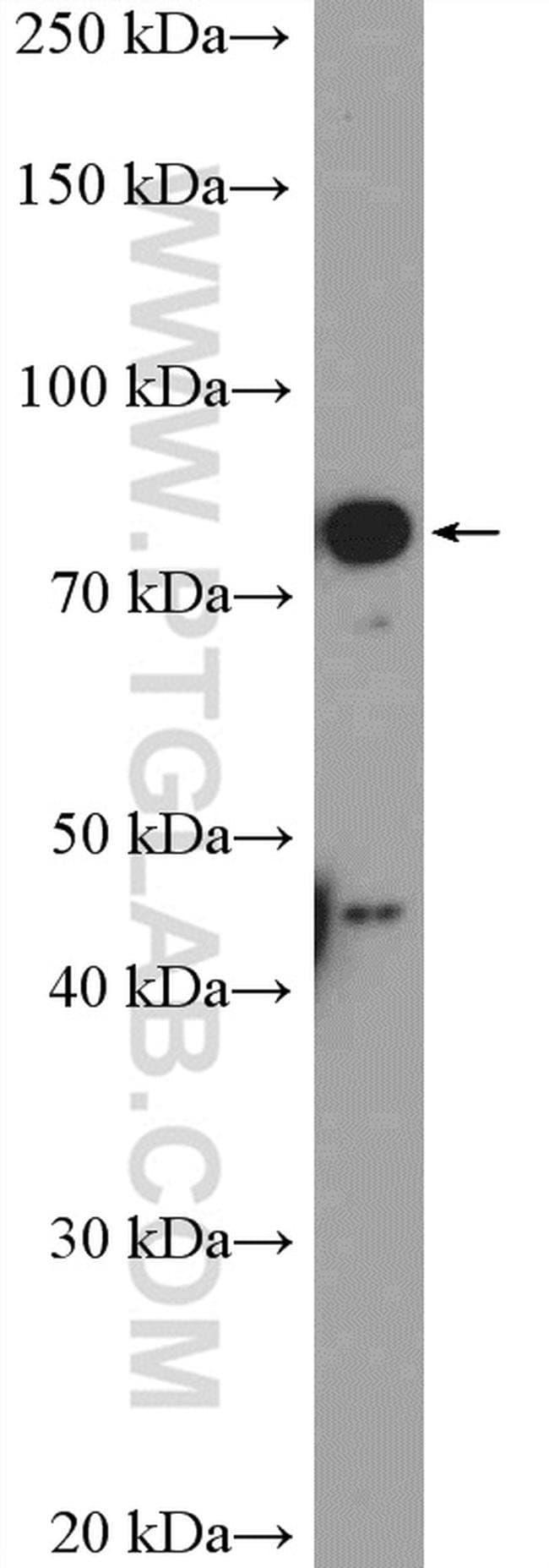 KLHL11 Rabbit anti-Human, Mouse, Rat, Polyclonal, Proteintech 20 μL; Unconjugated Ver productos