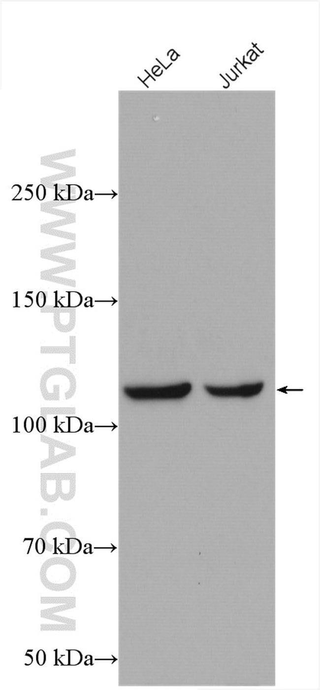 IARS2 Rabbit anti-Human, Mouse, Rat, Polyclonal, Proteintech 20 μL; Unconjugated Produkte