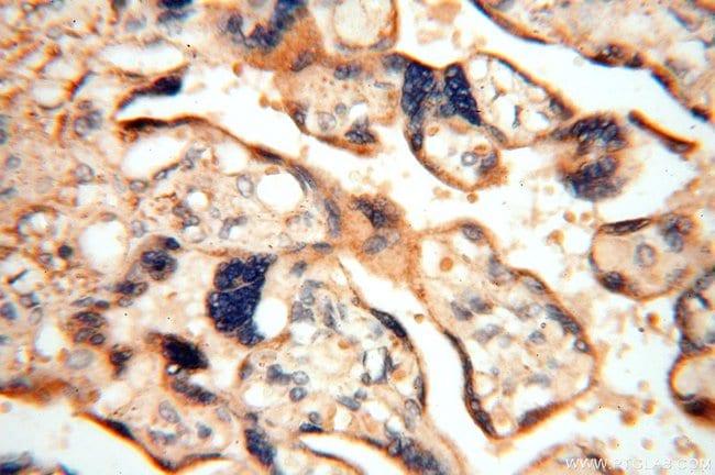 FUT11 Rabbit anti-Human, Mouse, Rat, Polyclonal, Proteintech 20 μL; Unconjugated Produkte