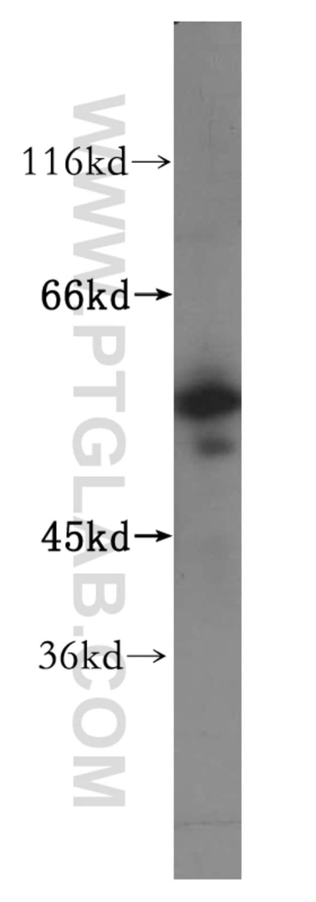 NPEPL1 Rabbit anti-Human, Mouse, Rat, Polyclonal, Proteintech 150 μL; Unconjugated Ver productos